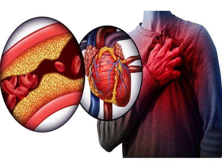 colesterol y corazón